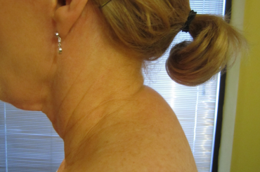 Don't underestimate the thorax when treating neck pain