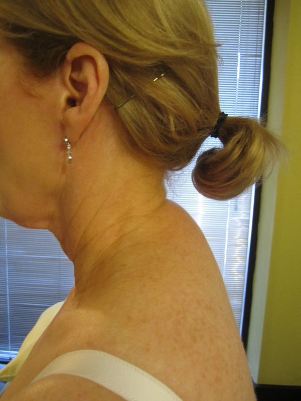 Altered cervico-thoracic and shoulder girdle alignment is a common finding in people with neck pain