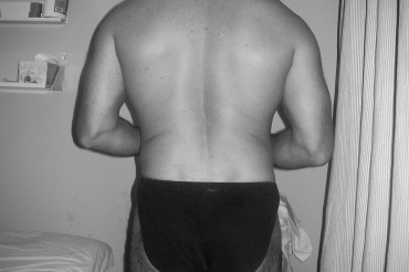 'Butt clenching' and 'tail tucking' and its link to back pain